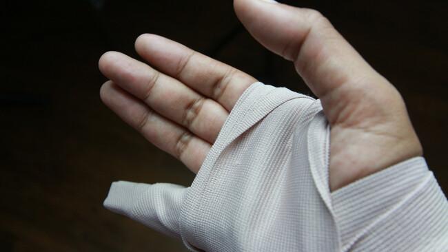 Finger Verletzung Handverletzung Operation Symbolbild
