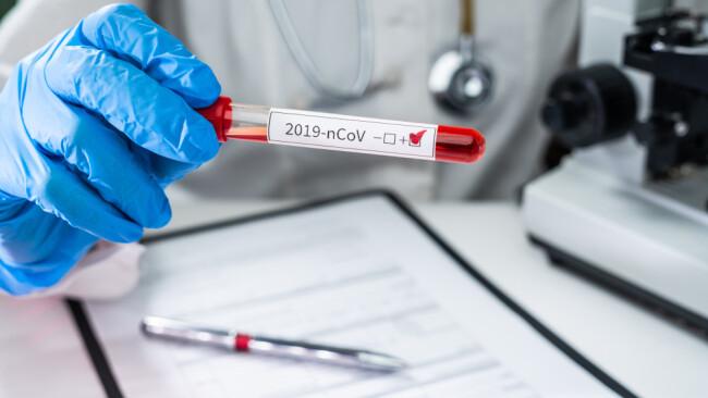 Coronavirus Coronatest Schnelltest